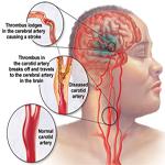 Tai biến mạch máu não - Chuẩn đoán, đánh giá và điều trị