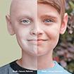 Các dấu hiệu tự phát hiện ung thư sớm