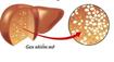 Khi gan nhiễm mỡ sẽ có dấu hiệu gì?