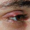 Mẹo chữa lẹo mắt tại nhà không để lại sẹo xấu
