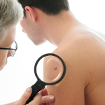 Dấu hiệu bất thường ở nốt ruồi cảnh báo ung thư