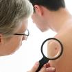 Ung thư tế bào hắc tố: Loại nguy hiểm nhất của ung thư da
