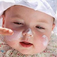 Bí quyết trị nẻ cho bé trong mùa đông cực hiệu quả