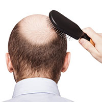 Mẹo trị hói đầu và rụng tóc cực hay