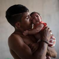 Dấu hiệu nhận biết cơ thể đang mắc virus Zika