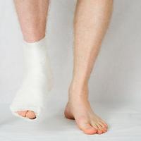 Biến chứng nguy hiểm có thể gặp khi gãy xương bó bột