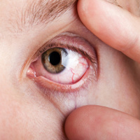 Gân màu đỏ xuất hiện trong mắt là bệnh gì?