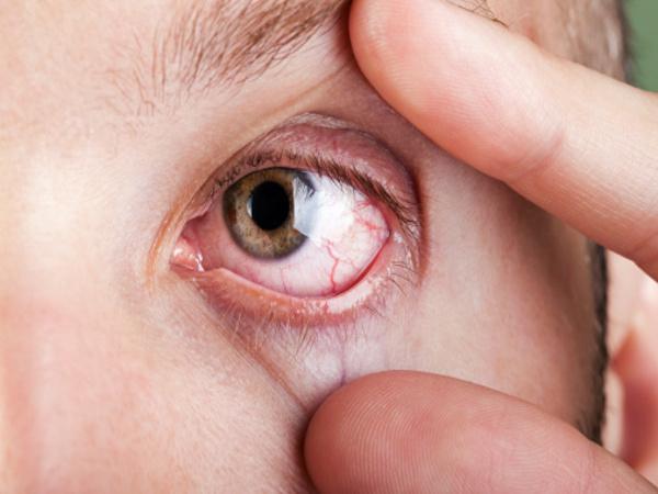 Mắt có đường gân máu nổi trong mắt là bệnh gì