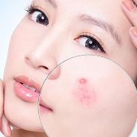 Cách làm mặt nạ hỗn hợp trị tận gốc mụn ẩn li ti trên mặt