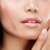 Cách chữa sẹo lồi đơn giản bằng phương pháp dân gian