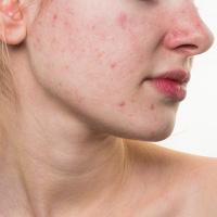 Nguy cơ mắc bệnh nguy hiểm khi da dầu, mụn, lông mặt nhiều