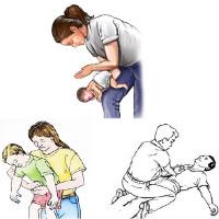 Hướng dẫn cách sơ cứu nhanh khi hóc dị vật đường thở