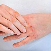 3 bệnh về da thường gặp vào mùa đông và cách phòng ngừa